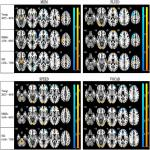Quantifying Age-Related Changes in Brain and Behavior: A Longitudinal versus Cross-Sectional Approach
