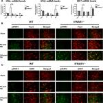 Ablation of Type-1 IFN Signaling in Hematopoietic Cells Confers Protection Following Traumatic Brain Injury