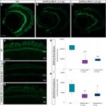 Shaping of Signal Transmission at the Photoreceptor Synapse by EAAT2 Glutamate Transporters