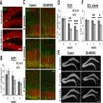 Role of NMDA Receptors in Adult Neurogenesis and Normal Development of the Dentate Gyrus
