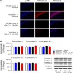 Glucagon-Like Peptide-1 Cleavage Product Improves Cognitive Function in a Mouse Model of Down Syndrome