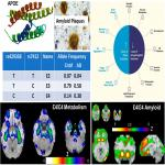 Atypical Localization and Dissociation between Glucose Uptake and Amyloid Deposition in Cognitively Normal APOE*E4 Homozygotic Elders Compared with Patients with Late-Onset Alzheimer's Disease