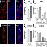 MicroRNAs 21 and 199a-3p Regulate Axon Growth Potential through Modulation of <em>Pten</em> and <em>mTo</em>r mRNAs
