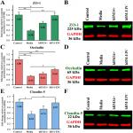 Beneficial Effects of Transplanted Human Bone Marrow Endothelial Progenitors on Functional and Cellular Components of Blood-Spinal Cord Barrier in ALS Mice