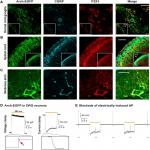 Optogenetic Silencing of Na<sub>v</sub>1.8-Positive Afferents Alleviates Inflammatory and Neuropathic Pain