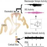 Multiscale Aspects of Generation of High-Gamma Activity during Seizures in Human Neocortex