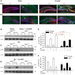 ERα Signaling Is Required for TrkB-Mediated Hippocampal Neuroprotection in Female Neonatal Mice after Hypoxic Ischemic Encephalopathy