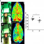 Photoperiodic Regulation of Cerebral Blood Flow in White-Footed Mice (<em>Peromyscus leucopus</em>)