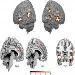 Amygdala Adaptation and Temporal Dynamics of the Salience Network in Conditioned Fear: A Single-Trial fMRI Study