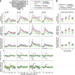 Neural Correlates of Vocal Auditory Feedback Processing: Unique Insights from Electrocorticography Recordings in a Human Cochlear Implant User