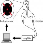 Real-Time Neurofeedback to Modulate β-Band Power in the Subthalamic Nucleus in Parkinson's Disease Patients