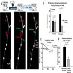 Increased Axonal Bouton Stability during Learning in the Mouse Model of MECP2 Duplication Syndrome