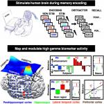Electrical Stimulation Modulates High γ Activity and Human Memory Performance