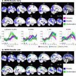 Orienting Attention to Short-Term Memory Representations via Sensory Modality and Semantic Category Retro-Cues