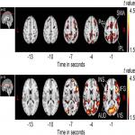 Slow Accumulations of Neural Activities in Multiple Cortical Regions Precede Self-Initiation of Movement: An Event-Related fMRI Study