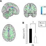 Microstructural White Matter Abnormalities in the Dorsal Cingulum of Adolescents with IBS