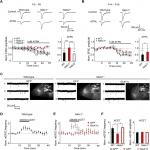 NETO1 Guides Development of Glutamatergic Connectivity in the Hippocampus by Regulating Axonal Kainate Receptors