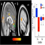 A Neural Mechanism of Strategic Social Choice under Sanction-Induced Norm Compliance