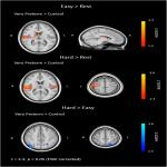 Verbal Fluency Is Affected by Altered Brain Lateralization in Adults Who Were Born Very Preterm