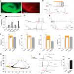 Altered Chloride Homeostasis Decreases the Action Potential Threshold and Increases Hyperexcitability in Hippocampal Neurons
