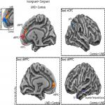 The Basolateral Amygdalae and Frontotemporal Network Functions for Threat Perception