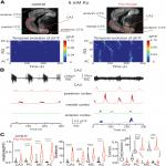Loss of KCNQ2 or KCNQ3 Leads to Multifocal Time-Varying Activity in the Neonatal Forebrain <em>Ex Vivo</em>