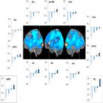 Hierarchical Cognition Causes Task-Related Deactivations but Not Just in Default Mode Regions