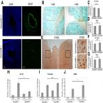 Astrogliosis Induced by Brain Injury Is Regulated by Sema4B Phosphorylation