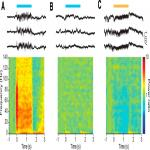 Activation of Distinct Channelrhodopsin Variants Engages Different Patterns of Network Activity