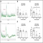 Altered Activity of Lateral Orbitofrontal Cortex Neurons in Mice following Chronic Intermittent Ethanol Exposure