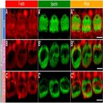 Remodeling of the Inner Hair Cell Microtubule Meshwork in a Mouse Model of Auditory Neuropathy AUNA1