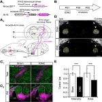 Afferent Fiber Remodeling in the Somatosensory Thalamus of Mice as a Neural Basis of Somatotopic Reorganization in the Brain and Ectopic Mechanical Hypersensitivity after Peripheral Sensory Nerve Injury
