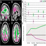 Synergistic Effects of Age on Patterns of White and Gray Matter Volume across Childhood and Adolescence