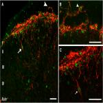 Mispositioned Neurokinin-1 Receptor-Expressing Neurons Underlie Heat Hyperalgesia in <em>Disabled-1</em> Mutant Mice