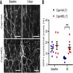 Ablation of TRPV1+ Afferent Terminals by Capsaicin Mediates Long-Lasting Analgesia for Trigeminal Neuropathic Pain