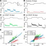 A Single Intraventricular Injection of VEGF Leads to Long-Term Neurotrophic Effects in Axotomized Motoneurons