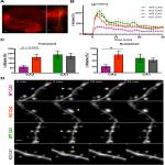RGS14 Restricts Plasticity in Hippocampal CA2 by Limiting Postsynaptic Calcium Signaling