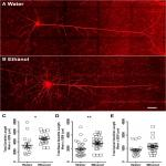 Increased Synaptic Excitation and Abnormal Dendritic Structure of Prefrontal Cortex Layer V Pyramidal Neurons following Prolonged Binge-Like Consumption of Ethanol