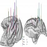 The Complex Hodological Architecture of the Macaque Dorsal Intraparietal Areas as Emerging from Neural Tracers and DW-MRI Tractography