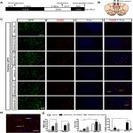 Inhibition of a Descending Prefrontal Circuit Prevents Ketamine-Induced Stress Resilience in Females