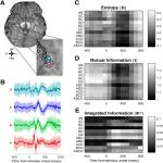 Conscious Perception as Integrated Information Patterns in Human Electrocorticography