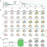 Selective Activation of Resting-State Networks following Focal Stimulation in a Connectome-Based Network Model of the Human Brain