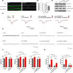 The RNA-Binding Protein hnRNP K Mediates the Effect of BDNF on Dendritic mRNA Metabolism and Regulates Synaptic NMDA Receptors in Hippocampal Neurons