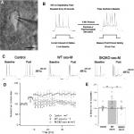 Muscarinic Modulation of SK2-Type K<sup>+</sup> Channels Promotes Intrinsic Plasticity in L2/3 Pyramidal Neurons of the Mouse Primary Somatosensory Cortex