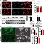 Loss of α-Synuclein Does Not Affect Mitochondrial Bioenergetics in Rodent Neurons