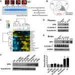 Osteopontin Is a Blood Biomarker for Microglial Activation and Brain Injury in Experimental Hypoxic-Ischemic Encephalopathy