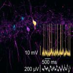 Altered Oscillatory Dynamics of CA1 Parvalbumin Basket Cells during Theta–Gamma Rhythmopathies of Temporal Lobe Epilepsy
