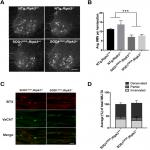 Deletion of <em>Ripk3</em> Prevents Motor Neuron Death <em>In Vitro</em> but not <em>In Vivo</em>