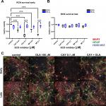 SCD Inhibition Protects from α-Synuclein-Induced Neurotoxicity But Is Toxic to Early Neuron Cultures