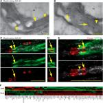 Purification and Characterization of Schwann Cells from Adult Human Skin and Nerve